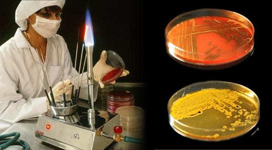 Свечи от воспаления придатков у женщин - виды, список, инструкции