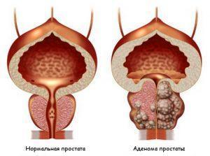 Обострение хронического простатита: симптомы, лечение и профилактика