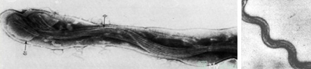 treponema pallidum — это возбудитель сифилиса: характеристика, особенности заражения и лечения