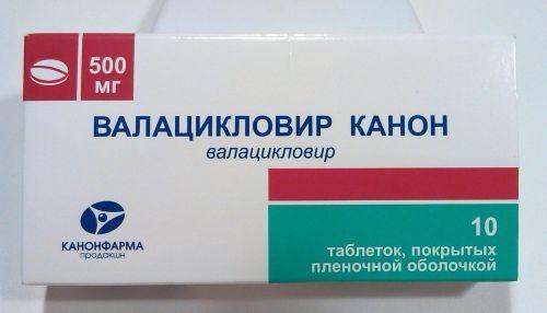 Герпес в горле - основные симптомы и лечение