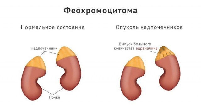 Полиурия - что это, причины, симптомы, диагностика, лечение