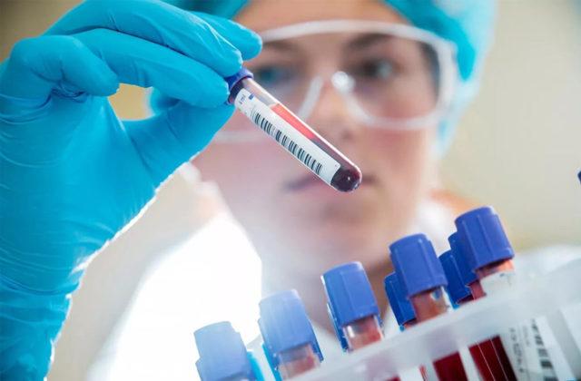 Диагностика гепатита С, В, А - как выявить заболевание
