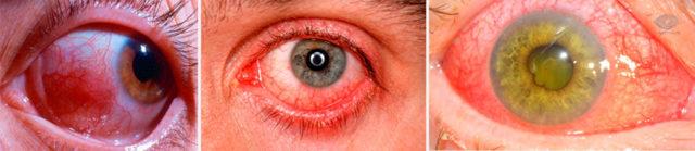Хламидиоз глаз, как распознать и выбрать глазные капли