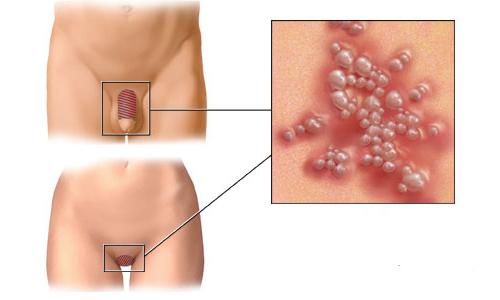 Таблетки от генитального герпеса - как правильно выбрать?