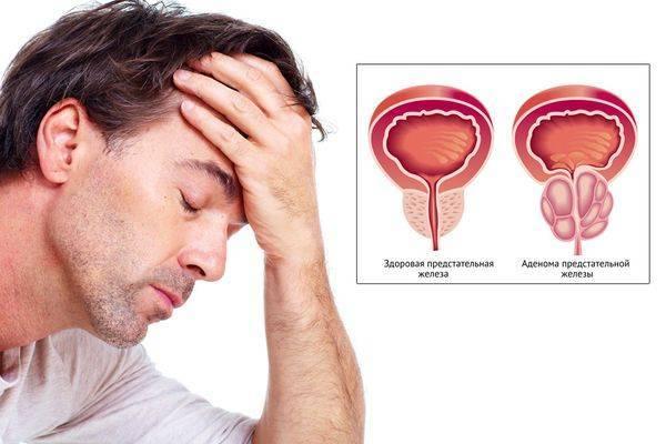 Чем опасен хламидиоз, последствия для женщин и мужчин