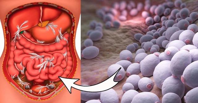 Кандидоз кишечника - симптомы, лечение и профилактика