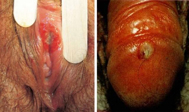 Лечение сифилиса - методы, схемы, сроки лечения заболевания