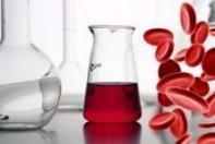 Кровь в моче - причины, диагностика и лечение