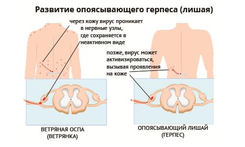Поясничный герпес: причины, лечение и последствия