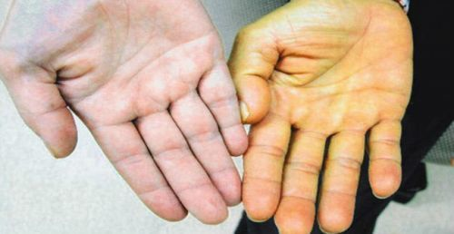 Лекарство от гепатита: препараты используемые в лечении В (Б) и С