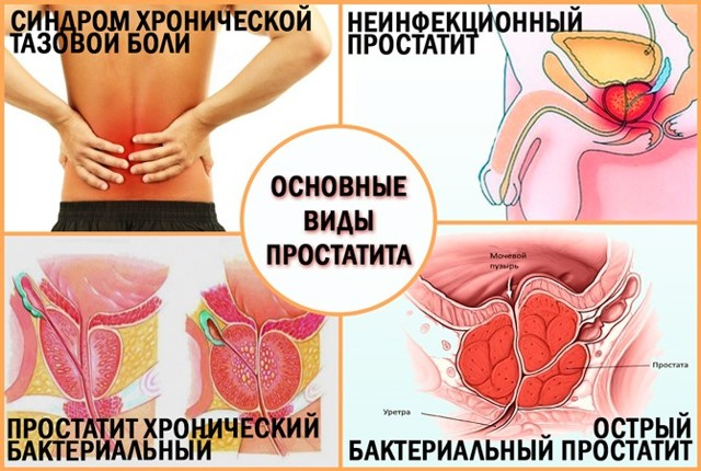 Лечение простатита народными средствами - эффективные методы
