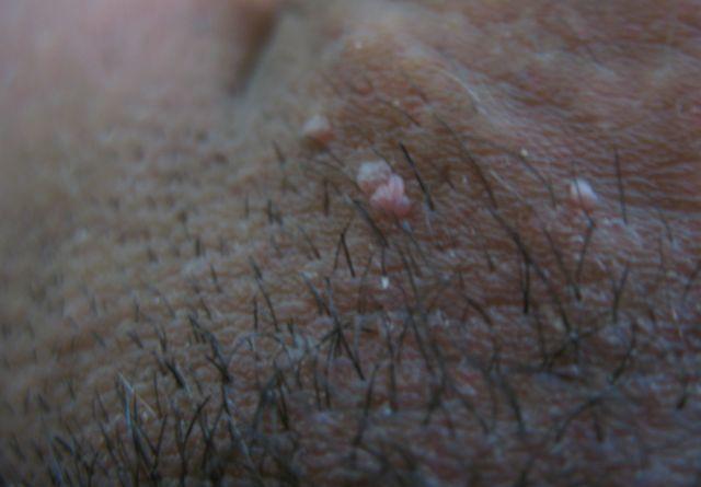 Папилломы на интимных местах - симптомы, причины, лечение