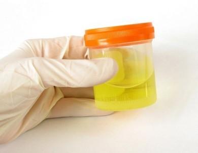 Осадок в моче после отстаивания - причины, диагностика и лечение