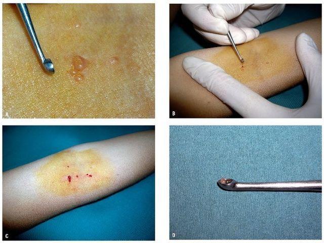 Моллюски на коже - причины, лечение и профилактика
