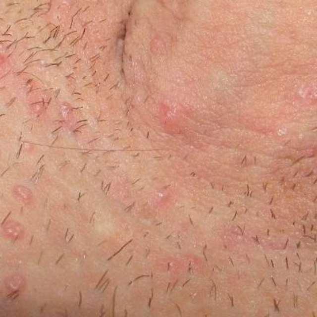 Зуд в паху у мужчин: причины, симптомы, как его лечить?