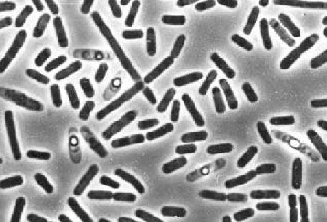 Что такое уреаплазма - особенности возбудителя инфекции