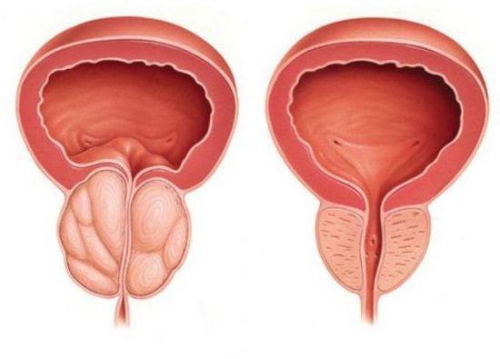 Красная моча у мужчины - причины, диагностика, терапия