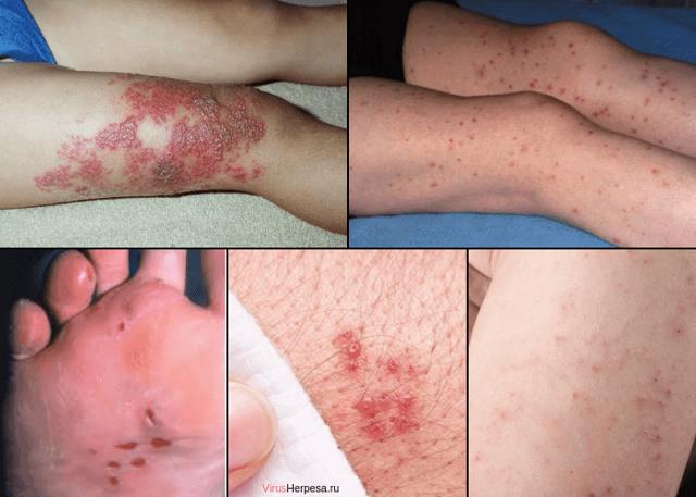 Герпес на ноге, особенности симптомов и лечения