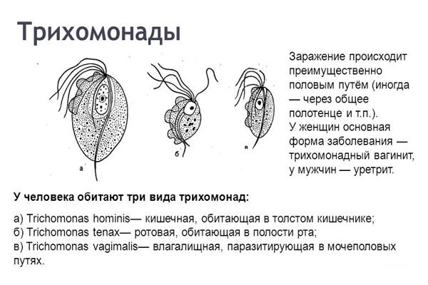 Лечение трихомонады у женщин в домашних условиях - основные средства