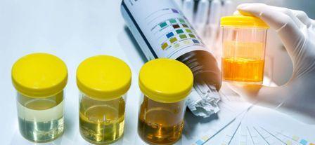 Белок в моче повышен - причины, диагностика и лечение