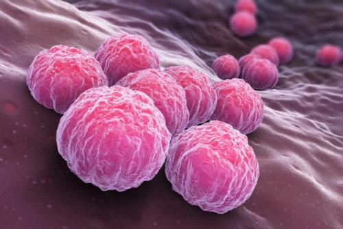 ПЦР на хламидии - определение ДНК возбудителя