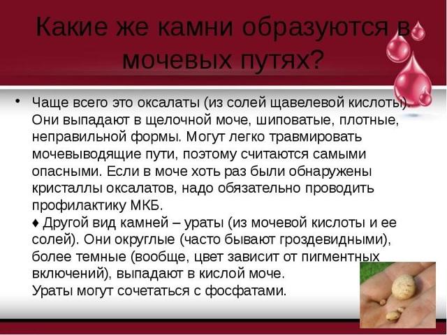 Оксалаты в моче - что это значит, причины повышения и методы лечения