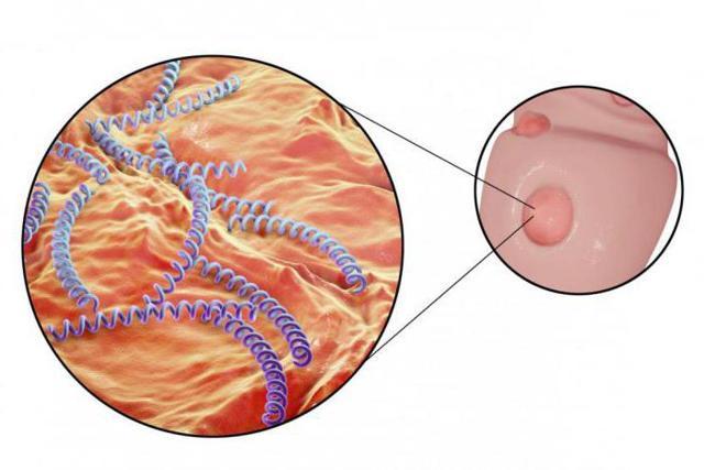 Диагностика сифилиса: как определяют заболевание внешне и лабораторно?