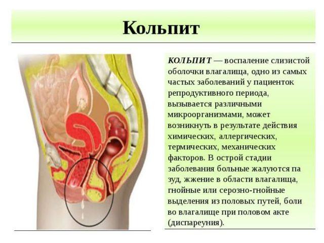 Кольпит при беременности, симптомы, лечение и последствия