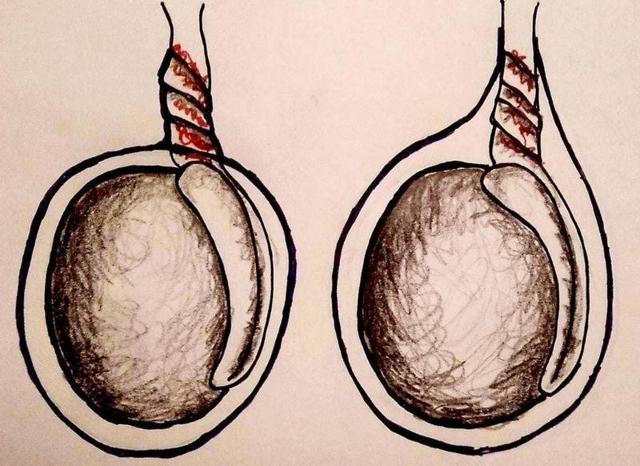 Болит левое яичко у мужчин: причины, признаки, методы лечения болей