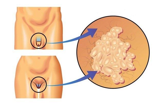 Вирус папилломы человека - что это, причины, симптомы, лечение