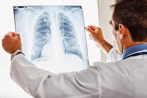 Кандидоз легких и верхних дыхательных путей: симптомы и лечение