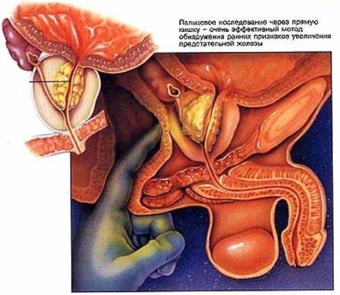 Острый простатит у мужчин - симптомы, лечение и профилактика