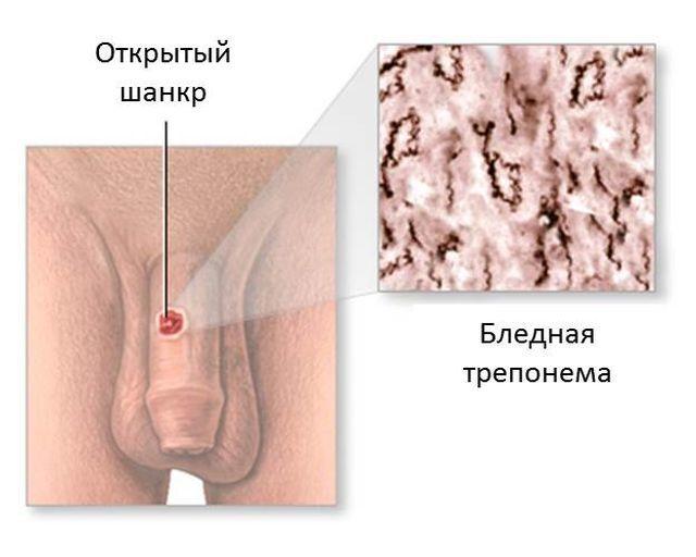 Инкубационный период сифилиса — сколько длится и от чего зависит?
