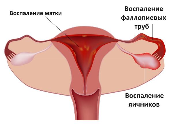 Выделения у женщин без запаха и без цвета и зуда