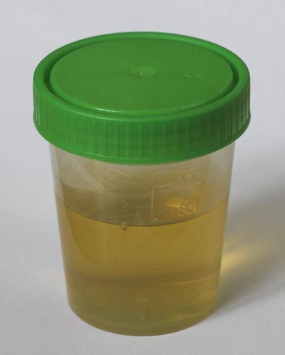Аморфные фосфаты в моче - что это значит, как с этим бороться?