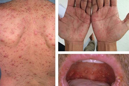 Сыпь при сифилисе — как выглядят высыпания на различных стадиях