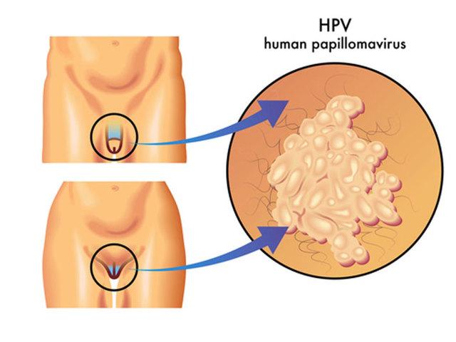 ВПЧ и беременность - влияние вируса на маму и плод, последствия