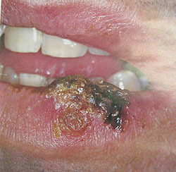 Вирус простого герпеса - особенности симптомов и лечения