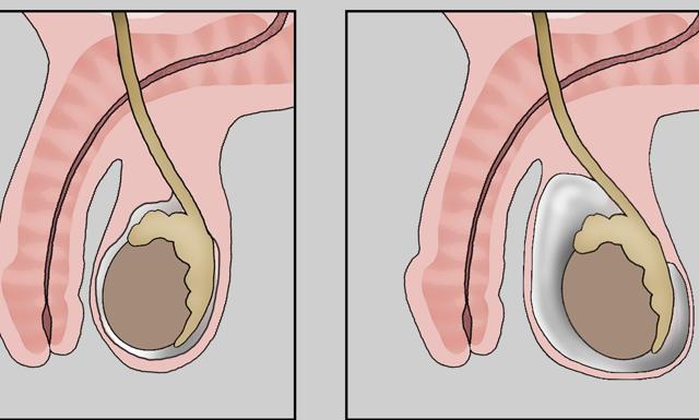 Водянка яичка у ребенка: причины, лечение без операции, осложнения