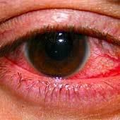 Герпес на глазах, на веках: симптомы и лечение