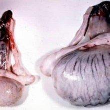 Последствия сифилиса: какие могут быть осложнения после лечения