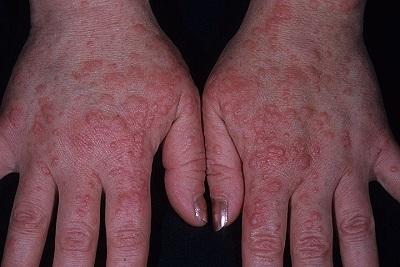 Герпес на руках: причины появления, симптомы и эффективное лечение