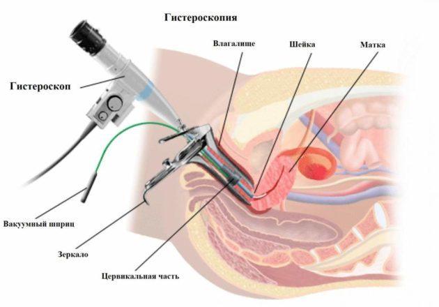 Кровянистые выделения в середине цикла - естественные и патологические причины