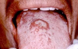 Сифилис во рту — симптомы, первые проявления, как он выглядит, лечение