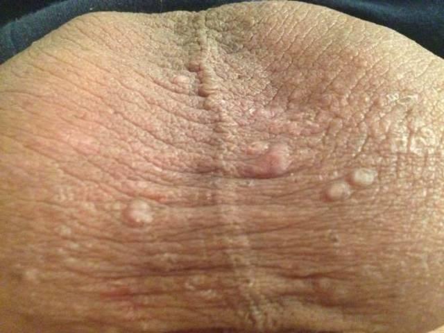Сифилис: симптомы, первые признаки заболевания