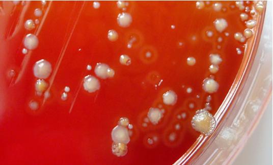 Гарднерелла Вагиналис (gardnerella vaginalis) - что это за бактерия, какие симптомы вызывает?