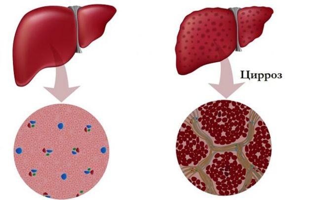 Как передается гепатит С, наиболее опасные пути передачи вируса