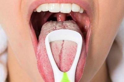 Молочница во рту у взрослых - симптомы, лечение медикаментозное и народными средствами