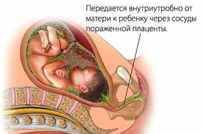 Как передается сифилис – основные способы передачи болезни
