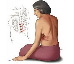 Герпес Зостер - симптомы, лечение и осложнения